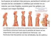 Clinica osteoporosis colombia bogota tratamientos novedosos y exclusivos