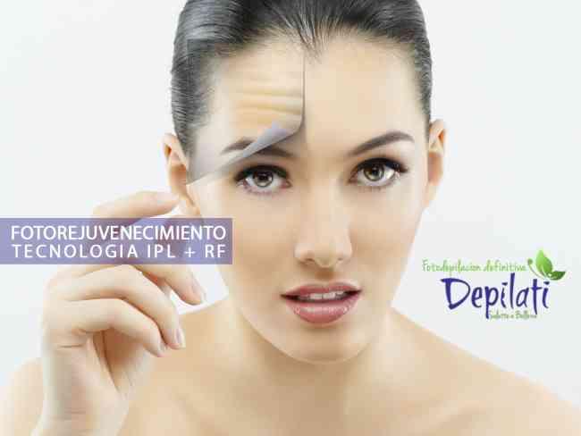 depilacion permanente ipl depilati cali