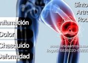 Como saber si tengo artrosis?