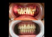 Odontología general y estética dr germán